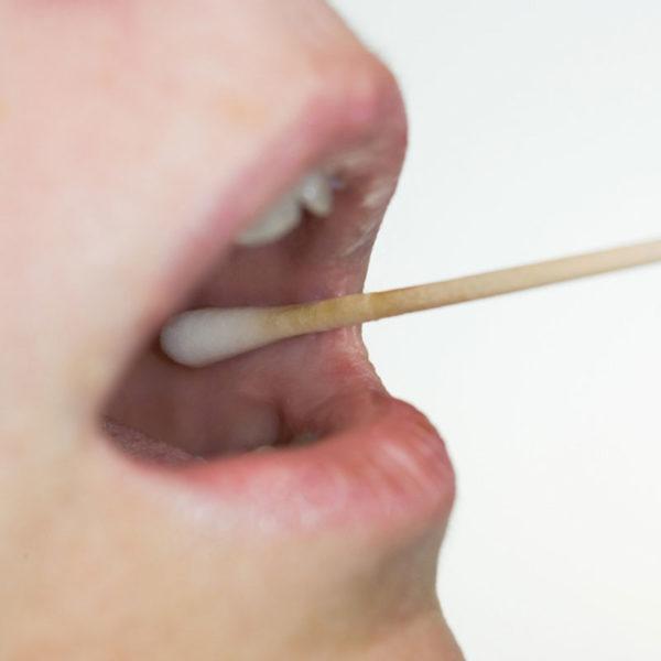 Halsfluss - Så testar du